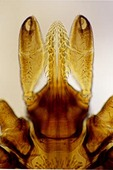 MOUTHPARTS OF THE DEER TICK, VECTOR OF LYME DISEASE