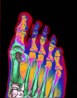 Colored X-ray of a human foot.